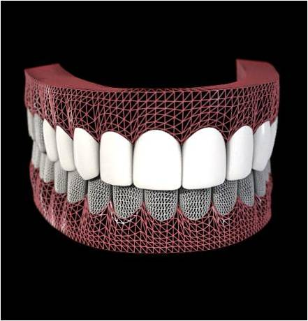 what are veneers 3d model