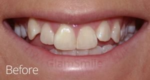 before glamsmile uneven yellow teeth